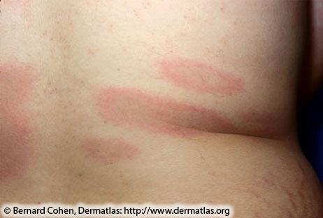 Раннее распространены болезни Лайма;  множественные красные поражения с темноватыми центрами