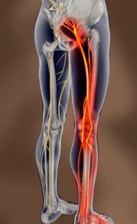 Resultado de imagen para nervio ciatico inflamado