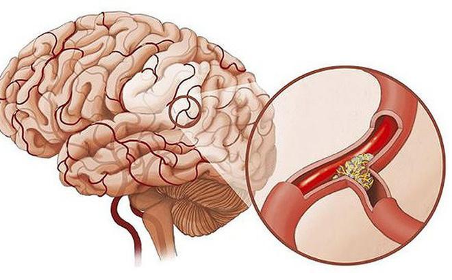 Kết quả hình ảnh cho Dấu hiệu bệnh thiếu máu lên não