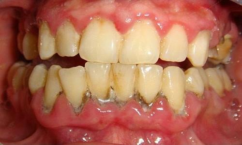 Để không tốn tiền vô ích khi tẩy trắng răng 1