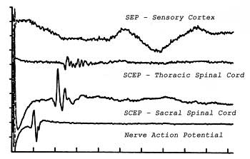Evoked potentials recorded from cortex, thoracic spinal cord, sacral spinal cord, and peripheral nerve in a dog as a result of electrical pulses applied to the tibial nerve