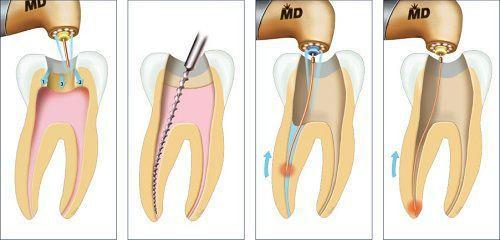 Phương pháp điều trị tủy răng như thế nào hiệu quả nhất 1