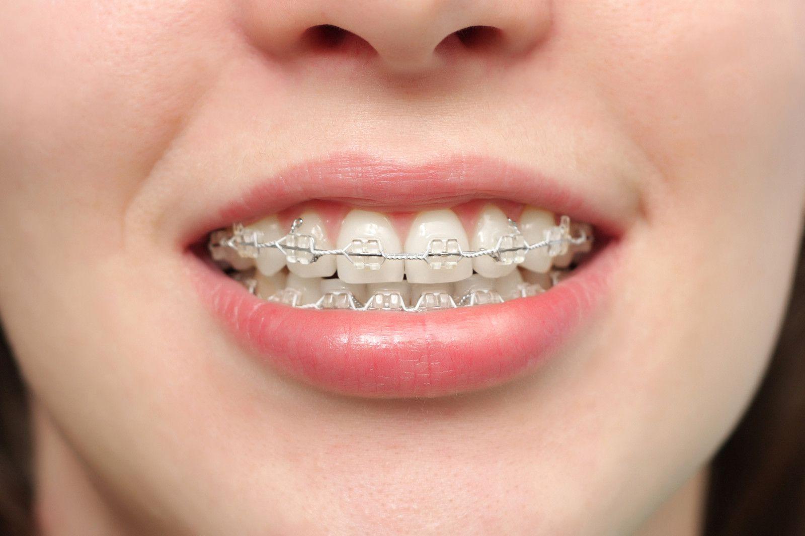Giải pháp nắn chỉnh răng vẩu có hiệu quả khi nào?