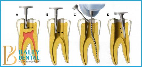 Có cần lấy tủy khi bọc răng sứ không? Chuyên gia tư vấn chi tiết 1