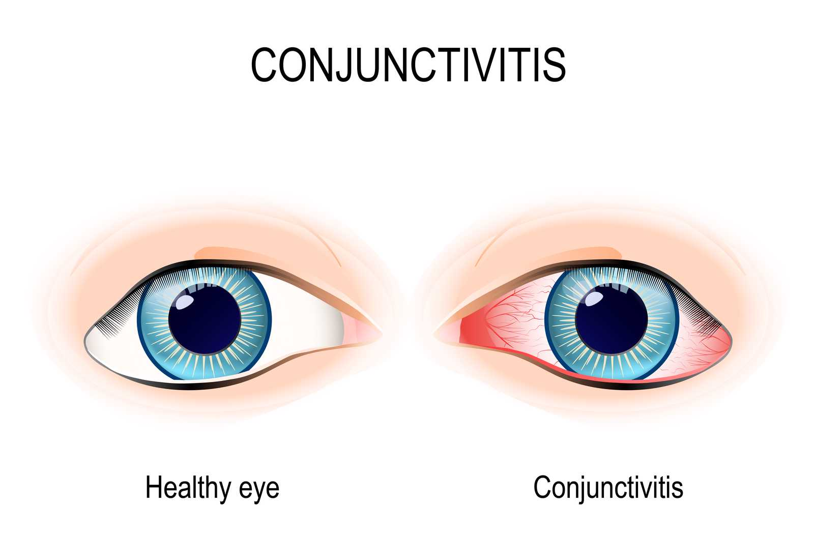 labeled drawing showing healthy eye side by side with an eye affected by the redness and irritation of conjunctivitis