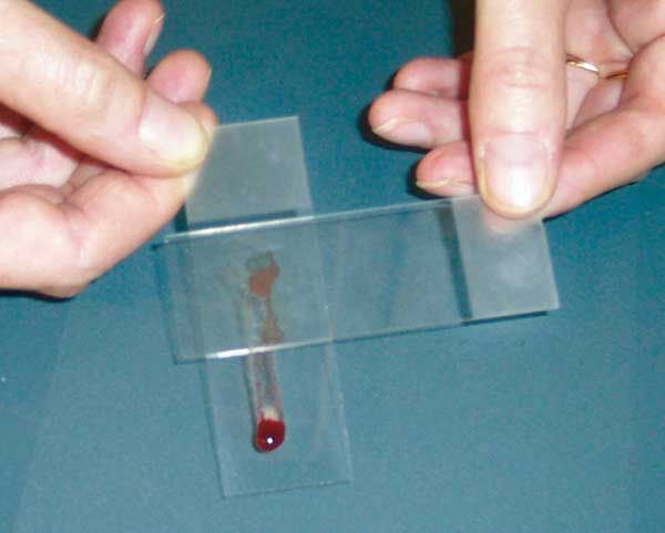 A smear made by placing another slide over the slide on which the aspirate was placed
