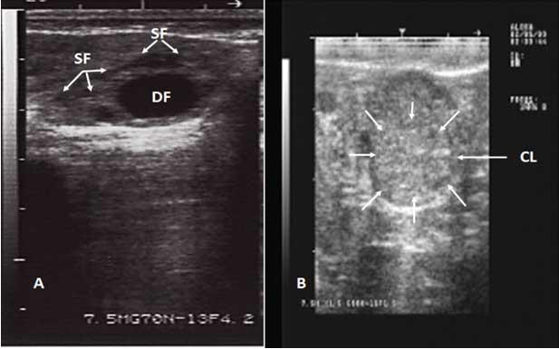 Figura 5. Ecografía de dos ovarios de búfalo. A. Imagen de un folículo dominante (DF) de 8 mm, que también muestra un conjunto de folículos en crecimiento <3 mm de diámetro (flechas blancas), observe los folículos llenos de líquido no ecogénico. Figura 5B. Las flechas muestran un cuerpo lúteo (CL), observe la textura ecogénica del ovario (transductor lineal de 7,5 MHz).
