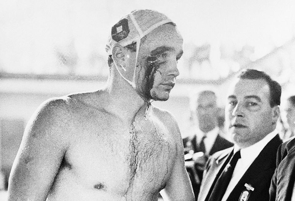 Ervin Zádor sai da piscina ensanguentado, em 1956 (Imagem: Yahoo Notícias/Reprodução)
