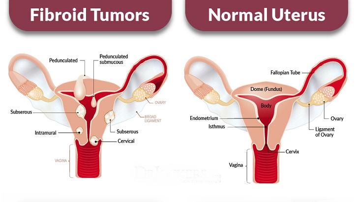 ovary chart
