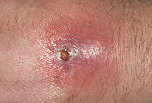 Abscess from MRSA