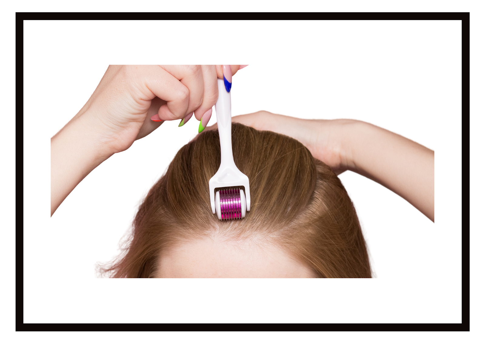 Microneedling to improve hair loss: How Does It Work?