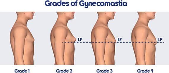 Gynaecomastia pic showing grades - Dr Rajat Gupta