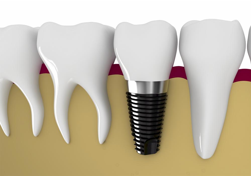 Trồng răng giả Implant mất bao lâu là Nhanh Nhất? - Nha khoa Bally
