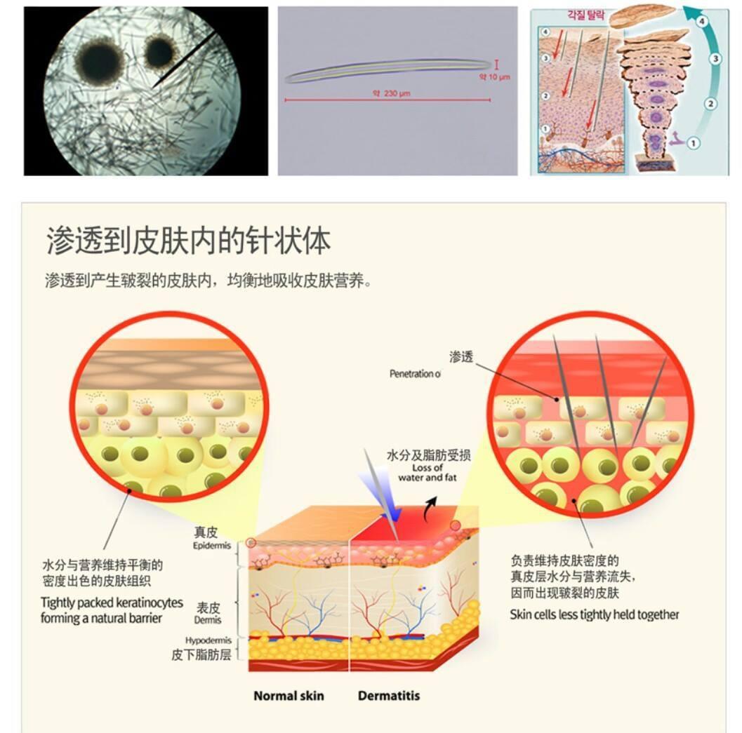 Cơ chế trị mụn bằng phương pháp vi kim