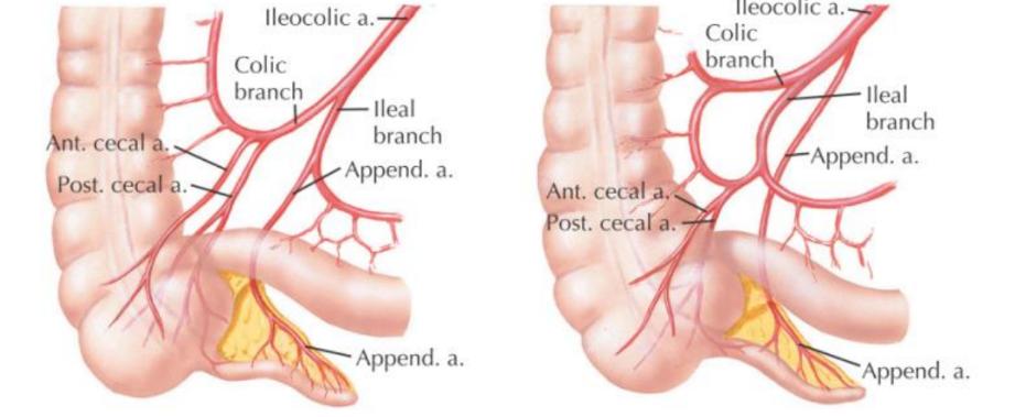 Variações da artéria apendicular FONTE: DELANEY, 2013.