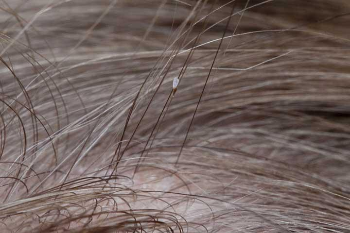 C:\Users\SUPRIYA\Downloads\head-lice-min.jpg