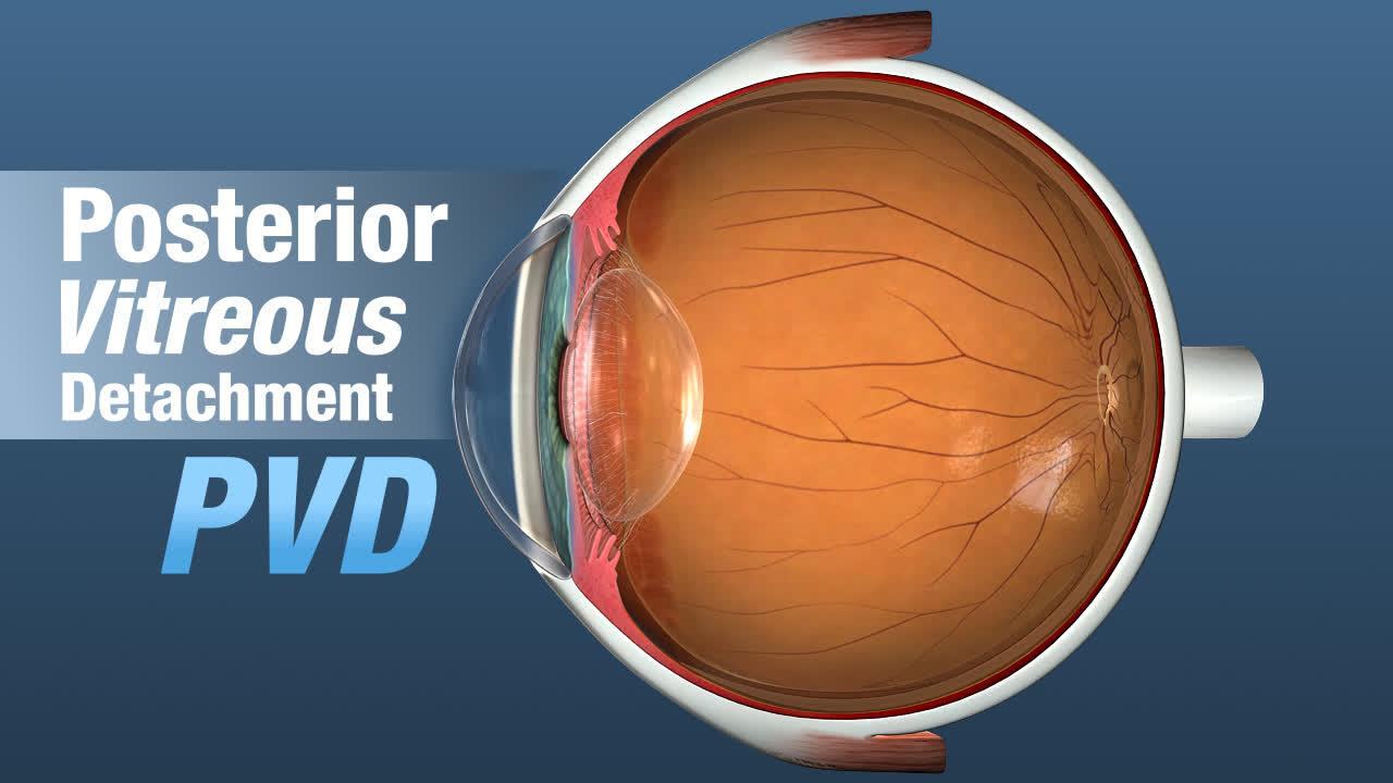 POSTERIOR VITREOUS DETACHMENT (PVD)