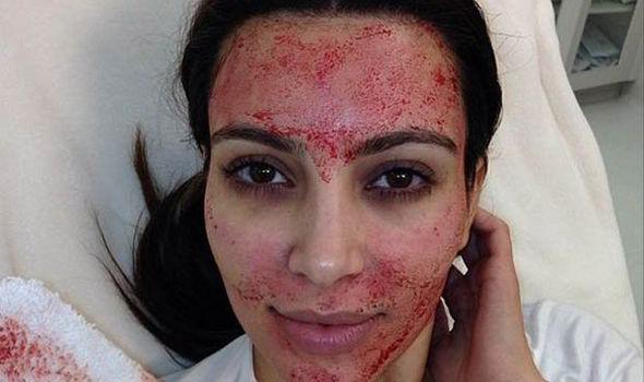 Kim Kardashian ghi lại hình ảnh của mình ngay sau khi cô lăn kim
