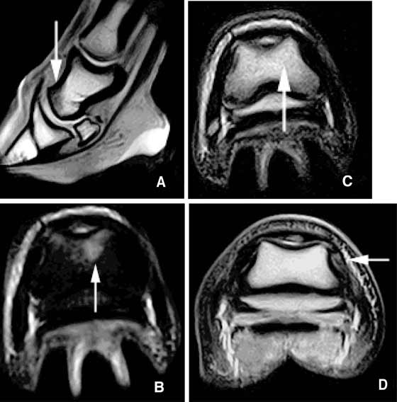 (A) T1-weighted gradient echo, (B) STIR, and (C) T2-weighted fast spin echo images of fluid (arrows) in the distal dorsal aspect of the second phalanx acquired using a Hallmarq distal limb scanner (0.27 T). A (D) T2-weighted transverse image acquired by a Hallmarq distal limb scanner (0.27 T) shows the value of T2-weighted images for detection of fluid in soft tissues.