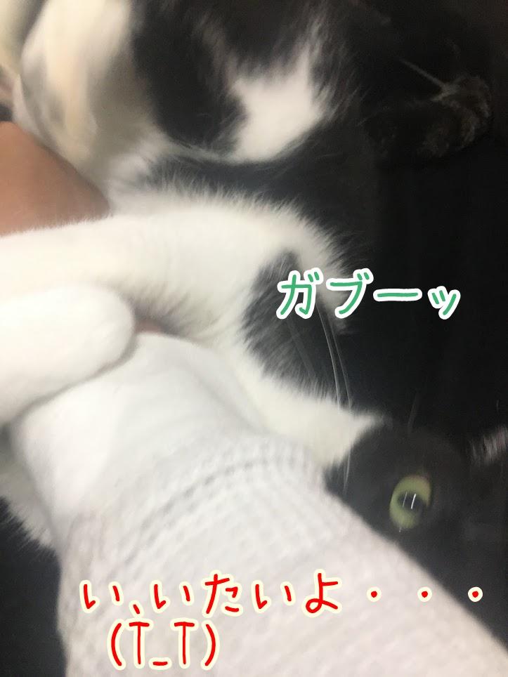痛いけどかわいい!猫の甘噛みが痛い時の効果的な対処法