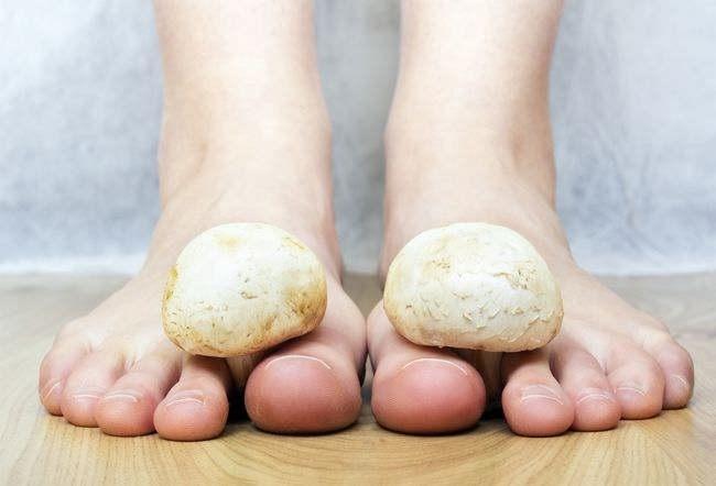 Image result for infeksi jamur