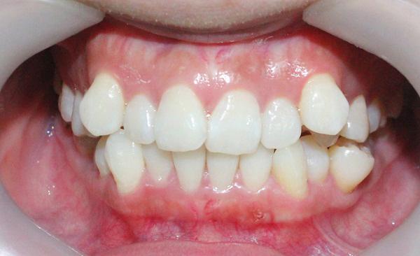 Bọc răng sứ cho răng khấp khểnh tiêu chuẩn Y khoa