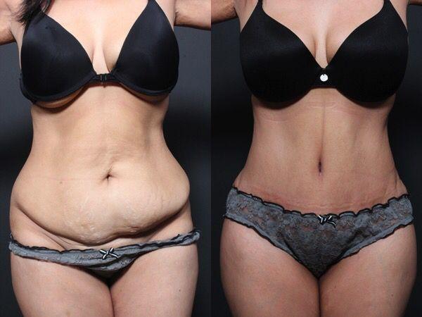 Karın germe mi liposuction mu