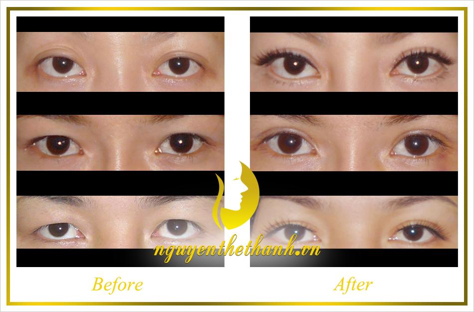 Cắt mắt 2 mí Hàn Quốc: Mắt đẹp long lanh - Ảnh 3