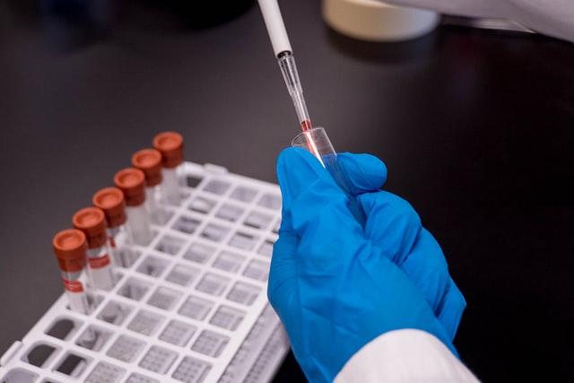 Doação da Abapa aumentará capacidade de testes para o coronavírus