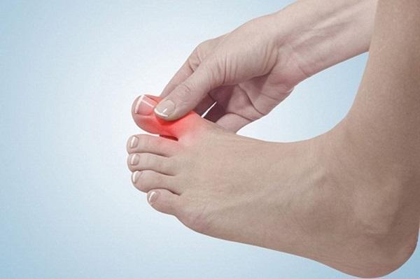 Đau ở khớp ngón chân cái, giữa bên phải trái cách chữa khỏi hoàn toàn