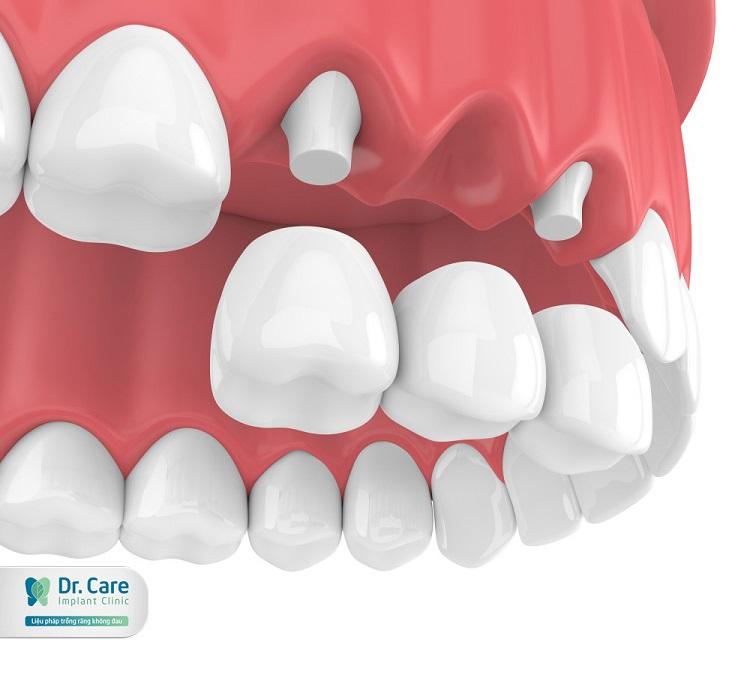 Có nên làm cầu răng không là thắc mắc của nhiều người
