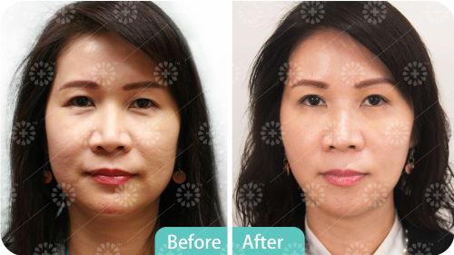 Treatment - 4D Nova Threads | Arcadia Medical & Cosmetic Center