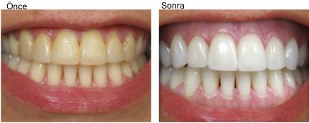 Diş Beyazlatma Yöntemleri Yenibencom