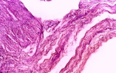 Microscopic picture of the uterus of a buffalo showing thick serosa due to fibrous tissue (H&E stained at 200 X magnification).