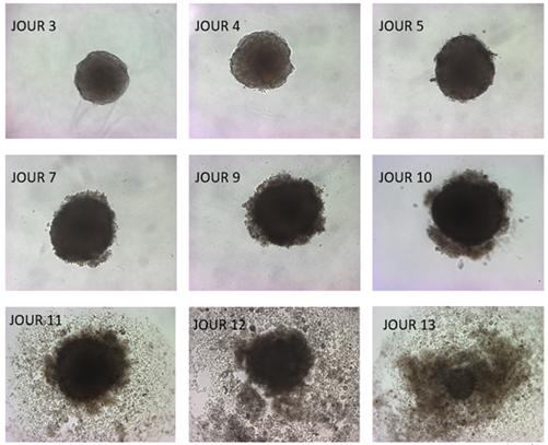 No terceiro dia, as células começaram a crescer e, no 13º, desintegraram-se. (Fonte: Uclouvain/Reprodução)