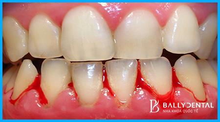 Răng bị nha chu phải làm sao điều trị cần căn cứ vào nguyên nhân