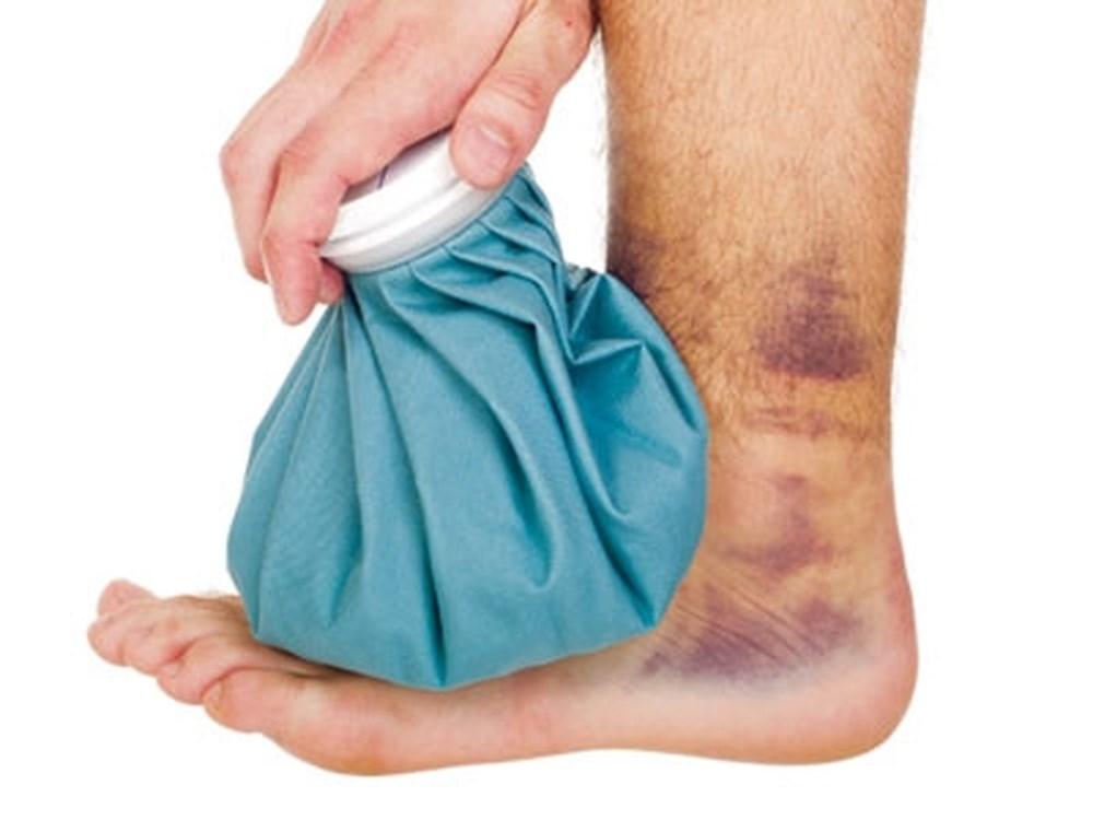 Chườm đá giúp điều trị bong gân cổ chân