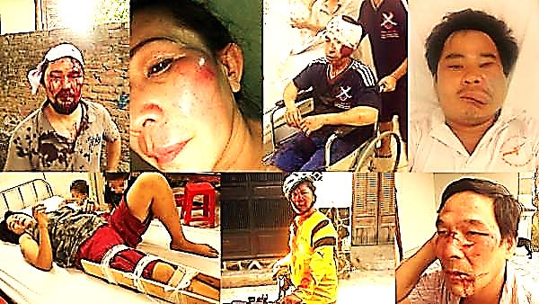 Image result for hinh chị hoàng mỹ uyên và con gái bị công an đánh dân