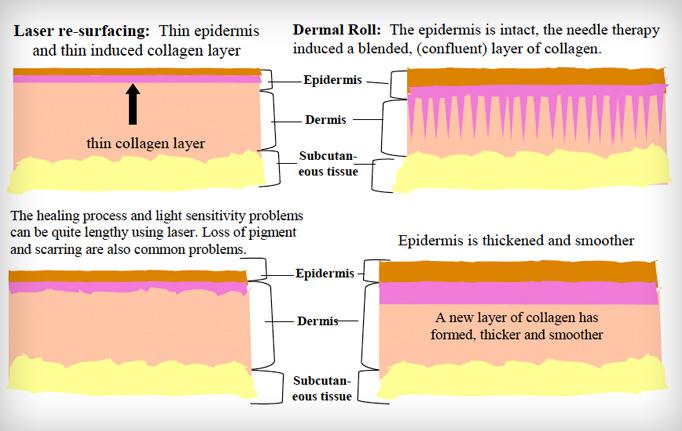 Lăn kim tế bào gốc trị sẹo lõm hoạt động dựa trên cơ chế tự phục hồi của làn da