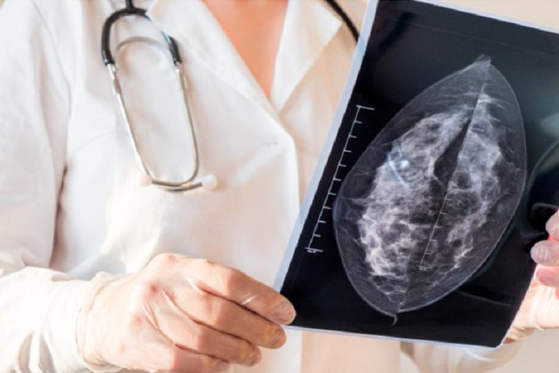 Composição molecular de um contraceptivo pode aumentar ou diminuir os riscos do câncer de mama. (Fonte: Freepik/Reprodução)