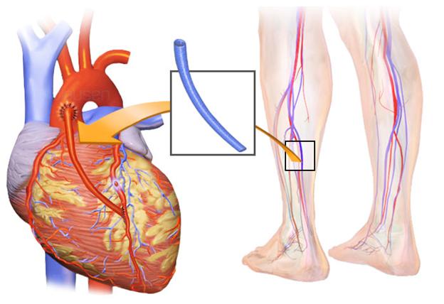 Восстановление после шунтирования сосудов сердца