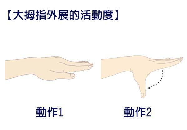 【大拇指外展的活動度】手放在身體的前方,讓手掌朝下跟地板平行。