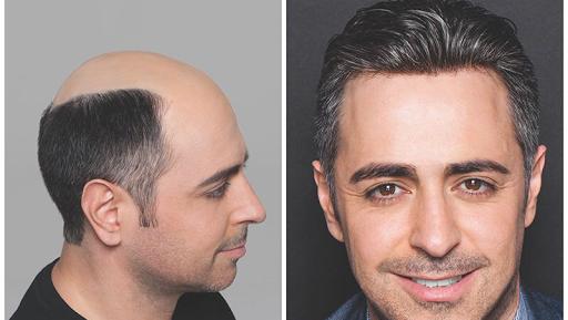 نظيره عريضة لاستكمال تركيب شعر طبيعي للرجال دبي Comertinsaat Com