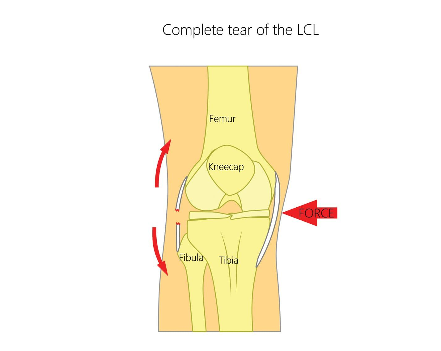 Lateral Collateral Ligament (LCL) Tears | Upswing Health