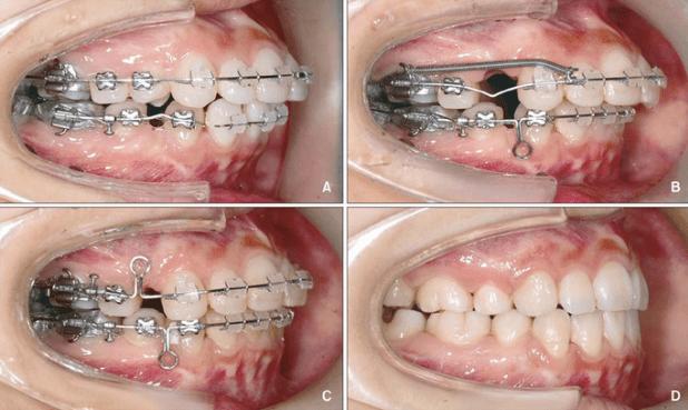 Bạn có biết nguyên nhân nào khiến niềng răng thất bại 1