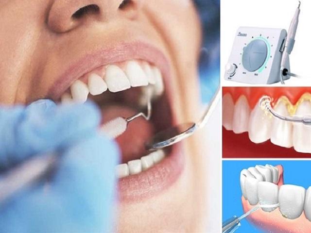 Nên cạo vôi răng bao lâu một lần tốt nhất cho răng miệng?