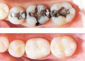 malgam replaced with composite fillings