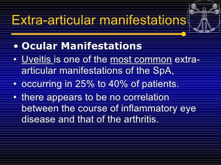 http://image.slidesharecdn.com/5spondyloarthropatiesseronegativearthritis-090702102745-phpapp02/95/5spondyloarthropaties-seronegative-arthritis-21-728.jpg?cb=1246548640