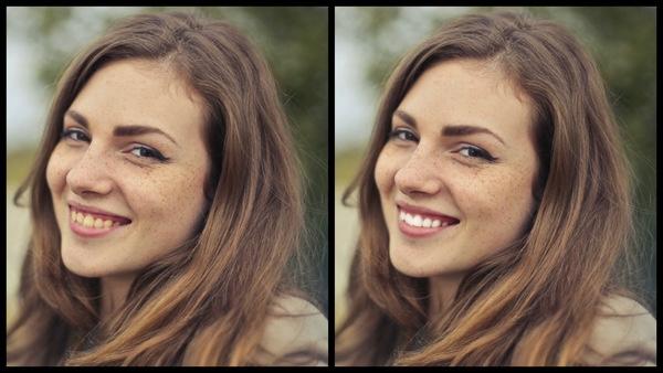 antes e depois da foto de uma mulher morena sendo que uma das fotos o dente está mais branco