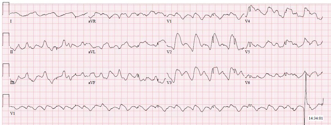 Hyperkalemia with bizarre QRS morphology